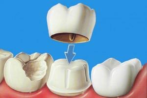 Couronne dentaire tombée, comment la coller temporairement
